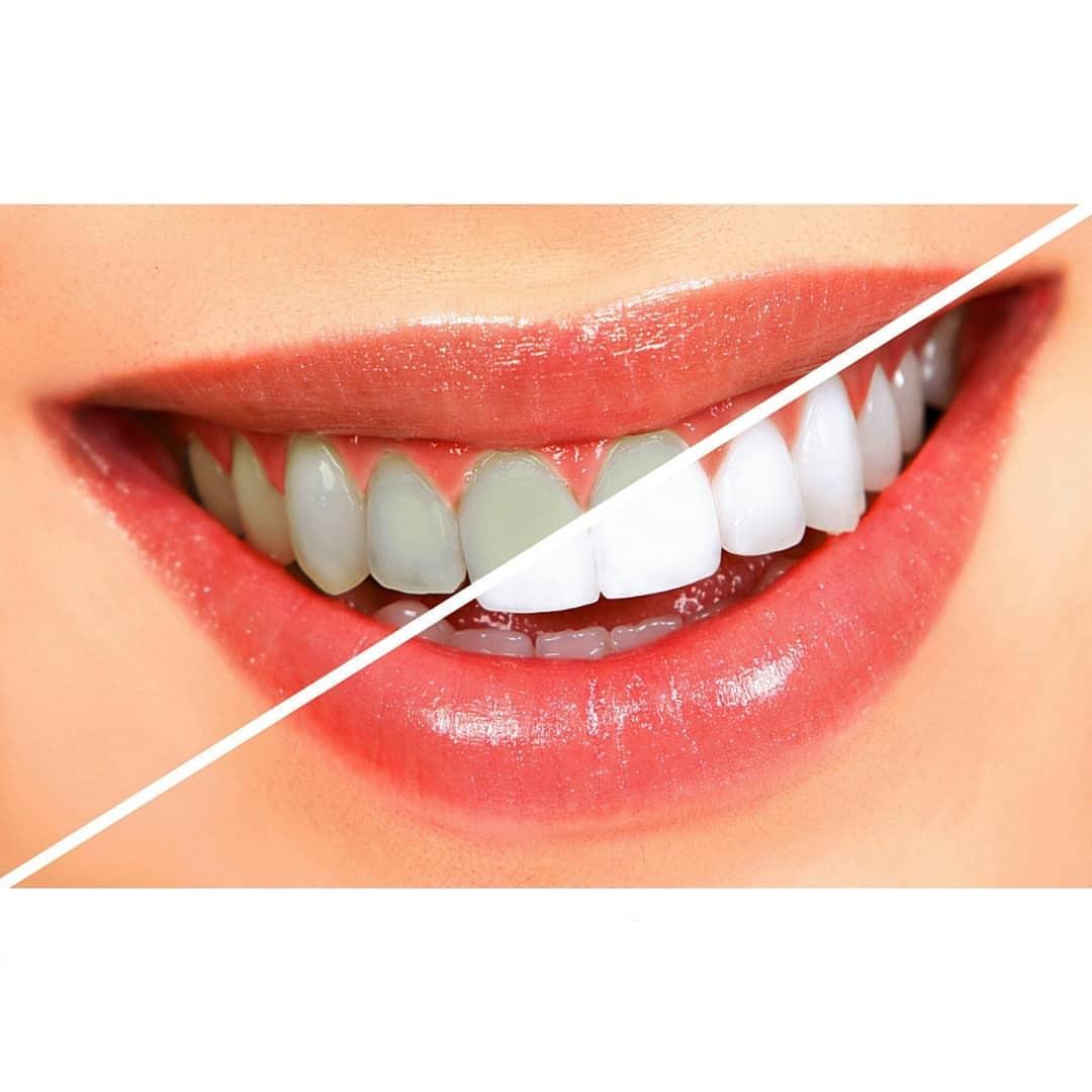 سفید کردن دندان توسط آب اکسیژنه